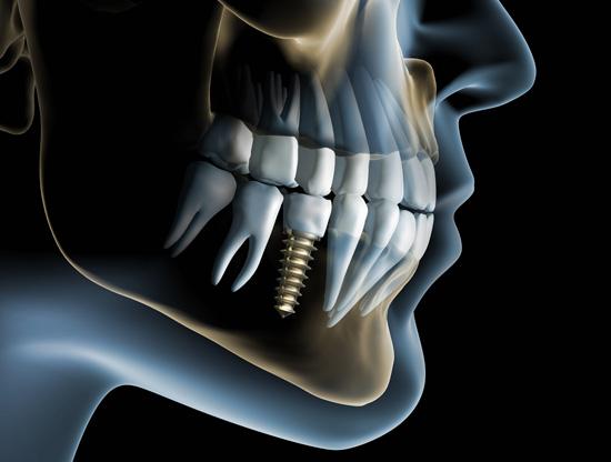 implantologie_zahnimplantate